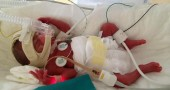 Il bambino prematuro