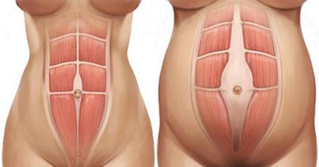 diastasi addominale