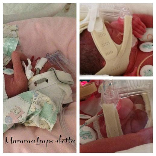 ventilazione neonato prematuro